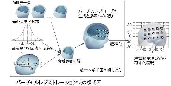 バーチャルレジストレーションの模式図